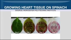 Spinach leaves could help rebuild hearts