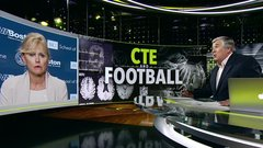 New study shows prevalence of CTE in NFL players
