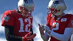 Brady to start despite injured hand