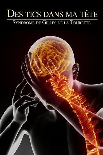 Des tics dans ma tête : syndrome de Gilles de la Tourette
